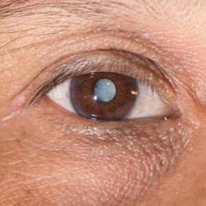 Cataract surgery options Austin, TX