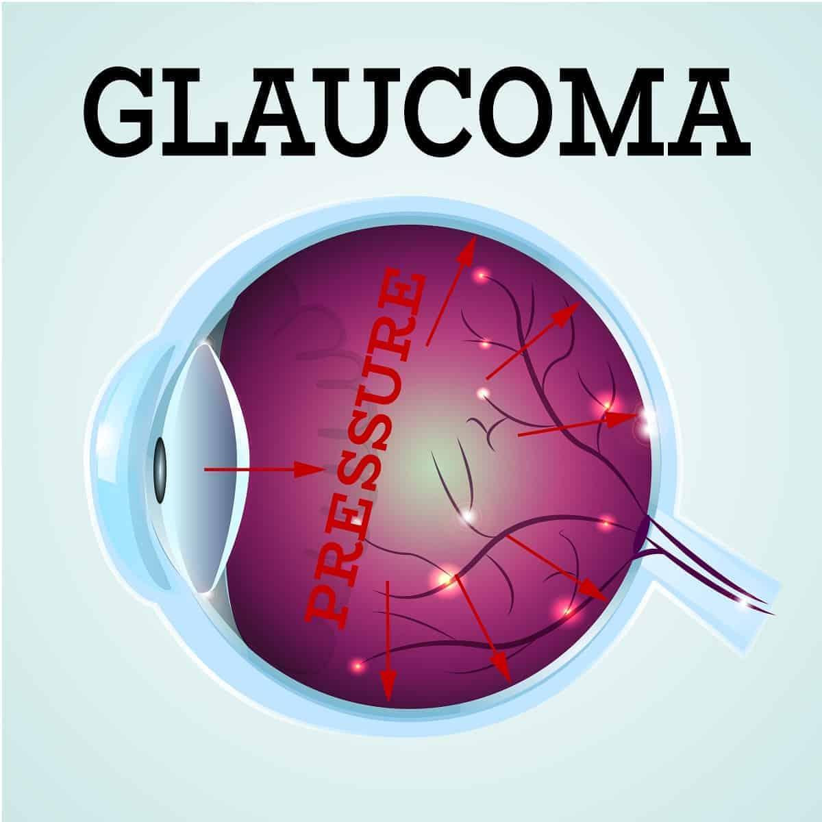Glaucoma Treatment in Austin, TX